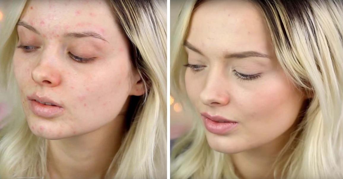 Как с помощью тонального крема замазать прыщи на лице