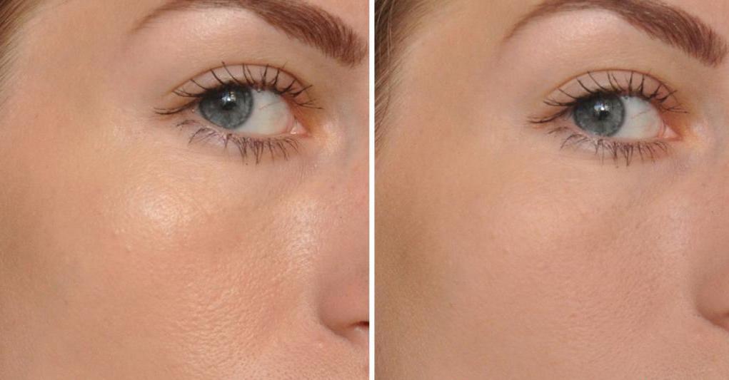 Естественный эффект здоровой матовой кожи – главная особенность прозрачной пудры