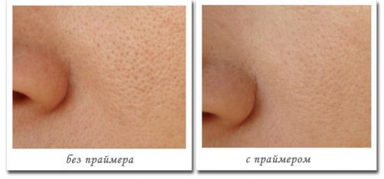 Результат использования праймера для жирной кожи
