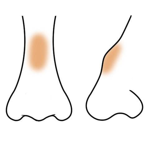 контуринг носа с горбинкой