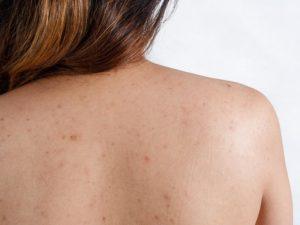 Прыщи на спине у женщины. Причины, как лечить, от чего появляются на спине и плечах, как быстро убрать в домашних условиях