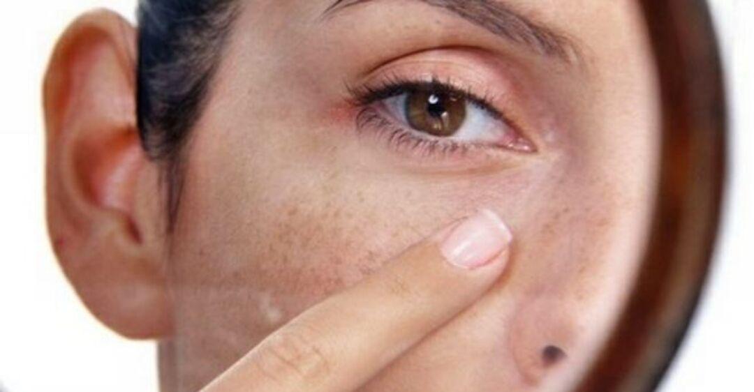 Как избавиться от пигментных пятен на лице: удаление разными средствами