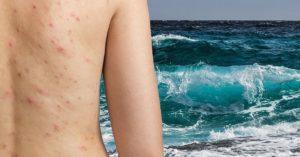Причины прыщей на спине и плечах у мужчин