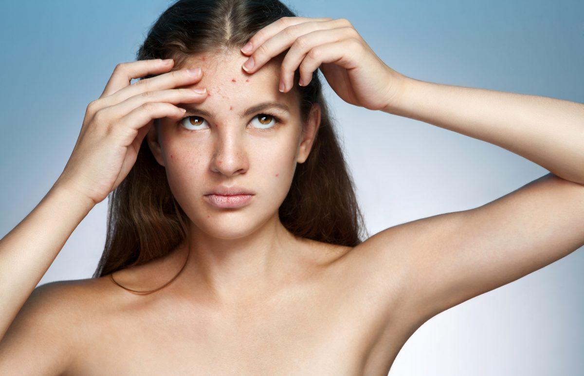 Как избавиться от черных угрей на лице быстро и эффективно