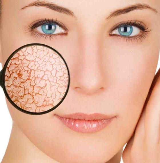 Почему возникает сухая кожа на лице и как от нее избавиться