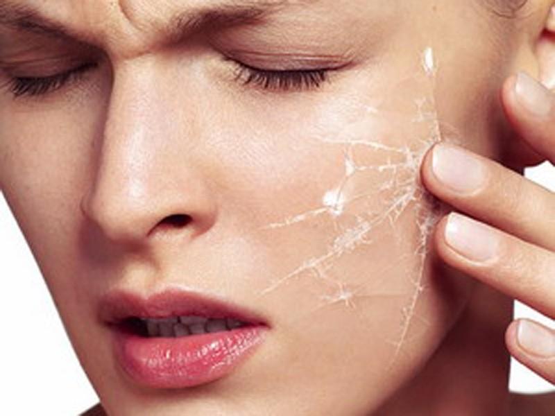Лучшая уходовая, декоративная и аптечная косметика для очень сухой кожи лица