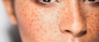 Пигментация кожи и тёмные пятна: какие домашние средства использовать