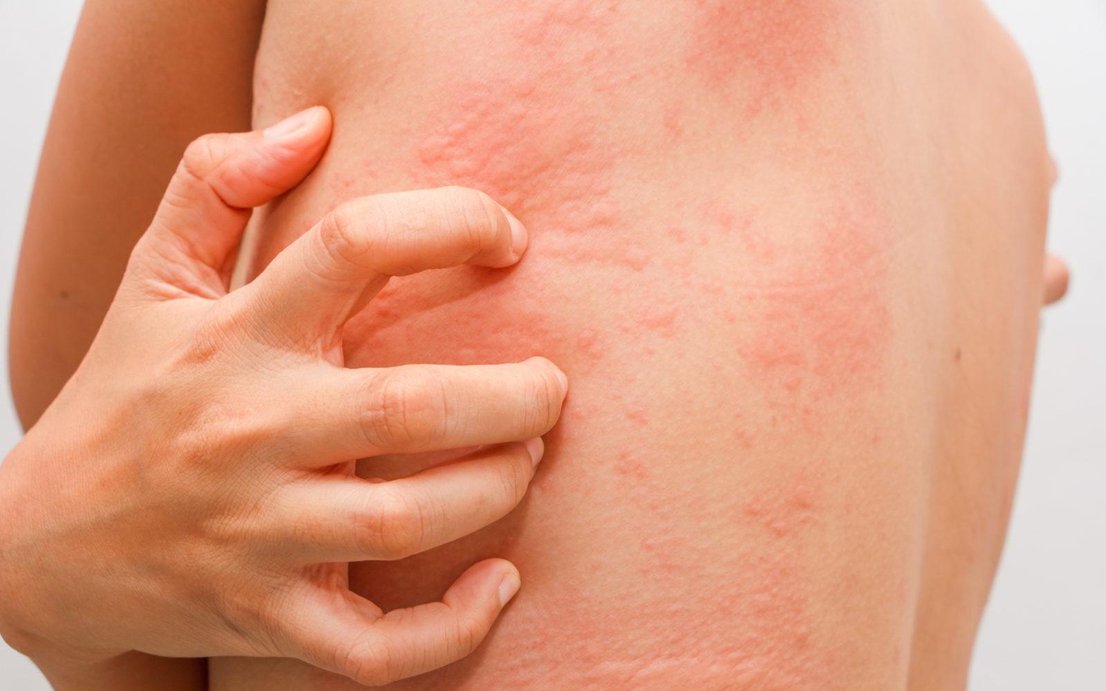 Как избавиться от зуда кожи