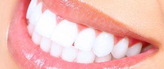 Как сделать зубы белыми за одну ночь?