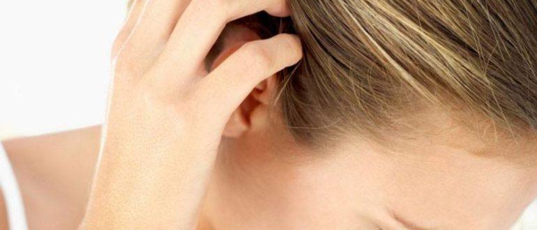 Чем лечить зуд кожи головы