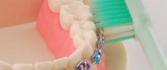 Лучшие зубные щетки для брекетов